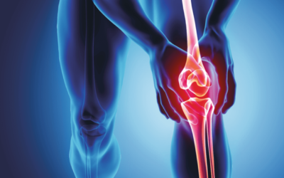 Xstrahl in Action: Radiotherapy Treatment For Post Traumatic Knee Bone Marrow Edema