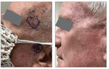 SCC and BCC Lesion Case Study